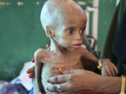 UN urges action to avert famine threatening 20 million people worldwide