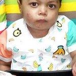 Pakistani boy treated for rare heart disease at Noida hospital
