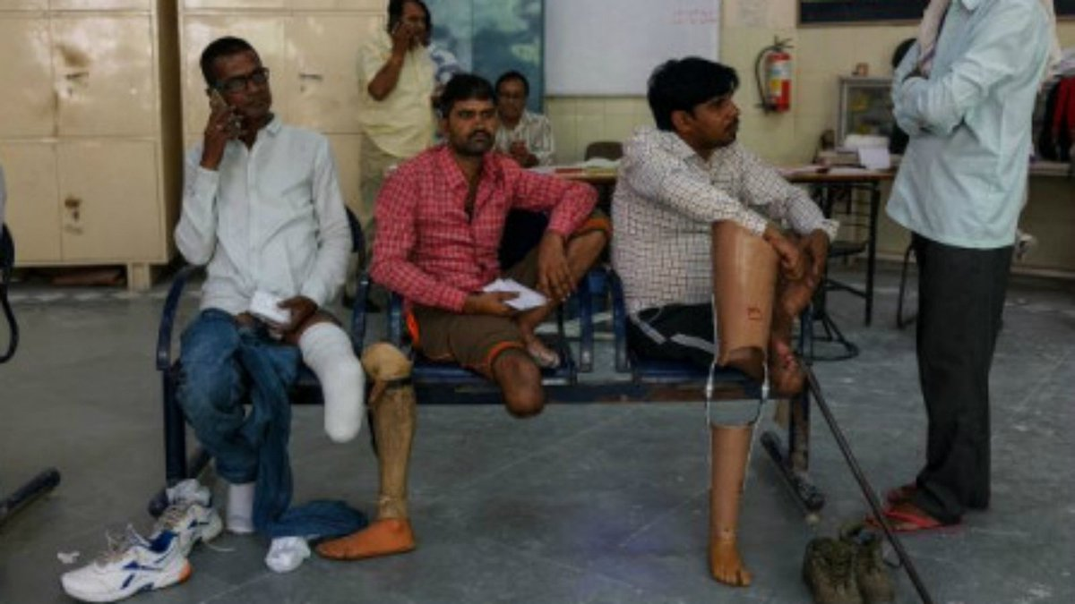 Low-cost prostheses offer amputees a second chance in India