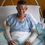 Burns victim feels lucky despite birthday barbecue catastrophe