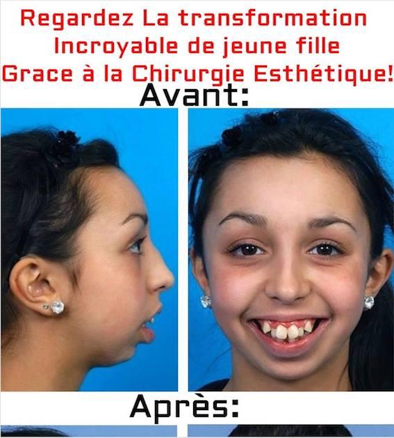 INCROYABLE changement d'une jeune fille Grace à la Chirurgie Esthétique La suite ici => https://t.co/R4Jbw11hNv https://t.co/M1vyj0KmO4