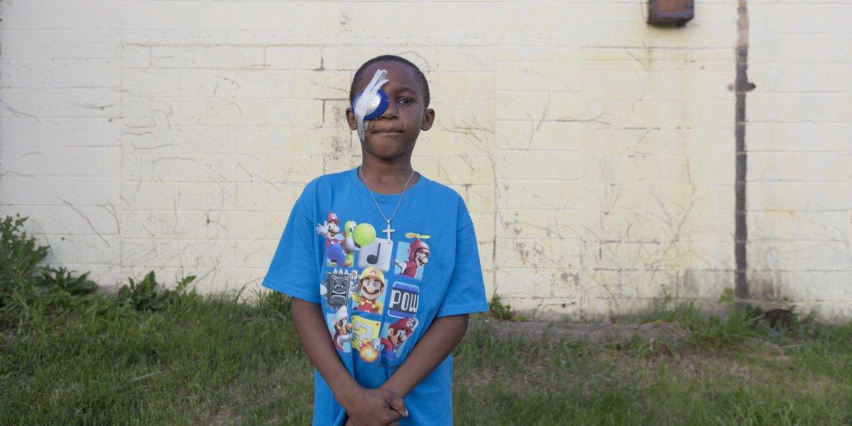 Detroit's high rate of shootings often scars innocent children