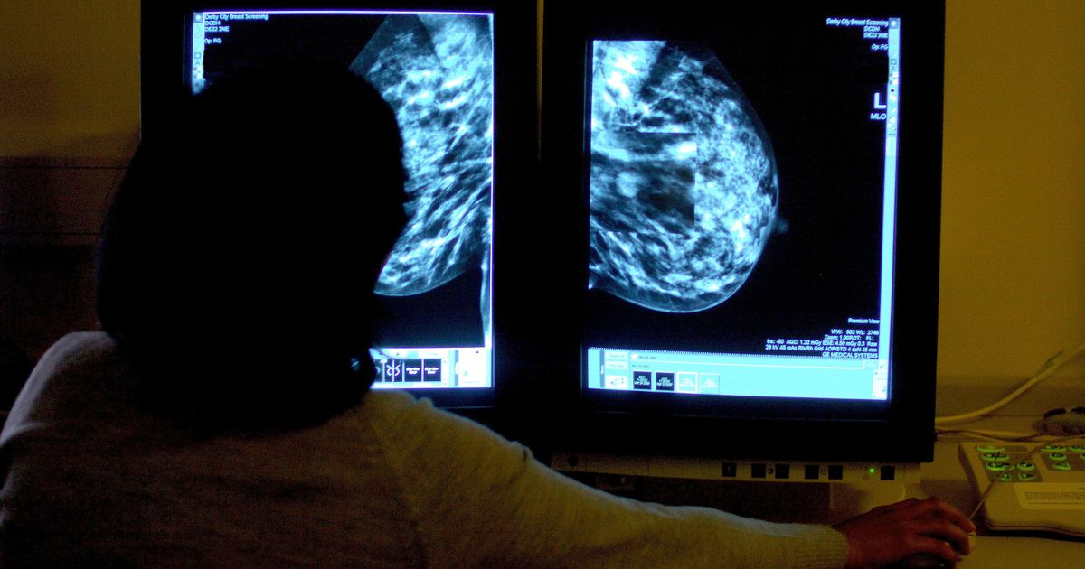 Breast cancer charity gets warning over unauthorised payments to trustee
