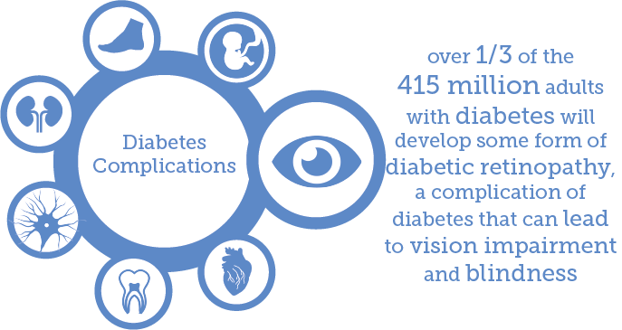test Twitter Media - Increasing prevalence of #diabetes means more people developing complications such as diabetic retinopathy. https://t.co/nzllJjX6XH https://t.co/MnsB5TxQqY