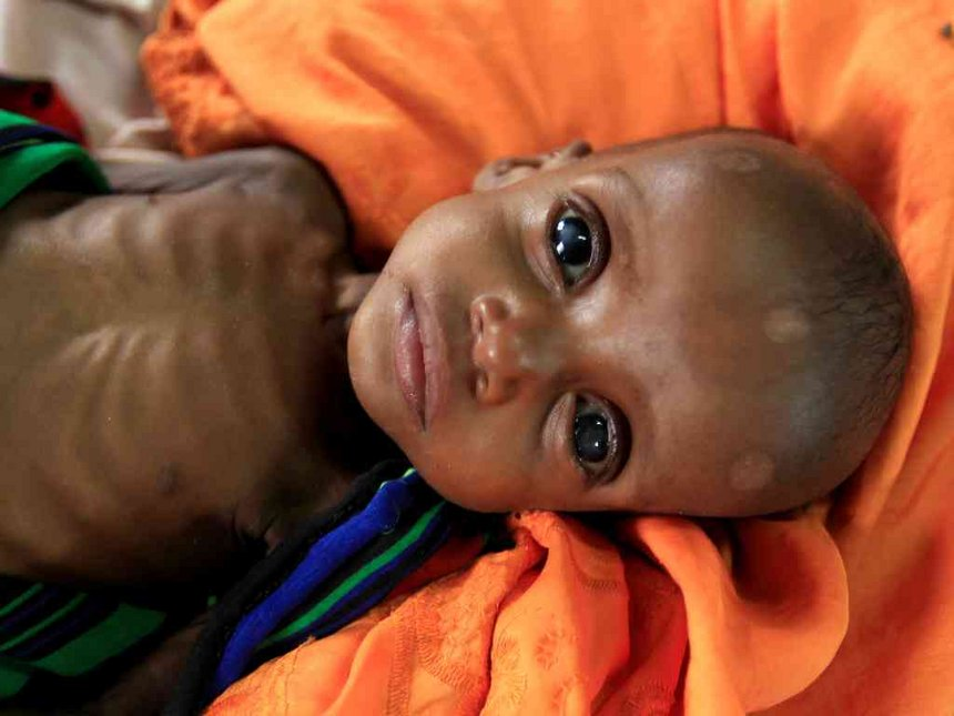 70,000 Kenyan children severely malnourished - survey