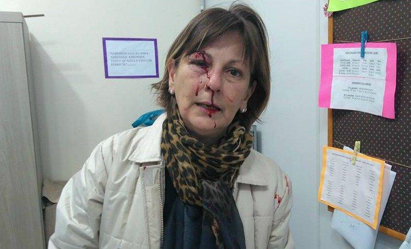 Professora denuncia aluno de 15 anos por agressão em escola de SC 'Dilacerada' #G1