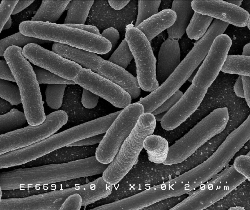 Researchers develop cheaper, faster test for E. coli in drinking water