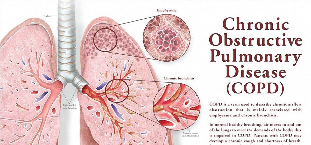 Viagra For Pulmonary Disease