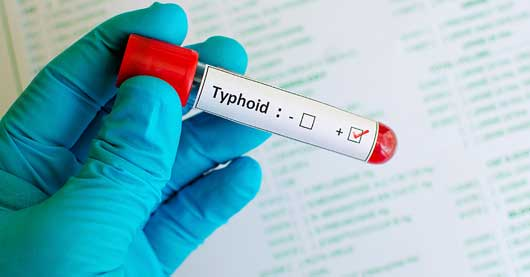 Ray of hope as scientists find new effective typhoid vaccine