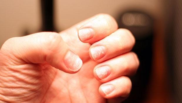 Грибок ногтей у ребенка на руках