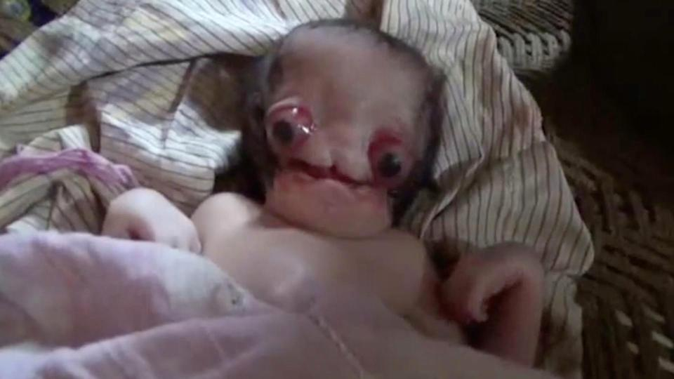 Baby boy survives being born with massive bulging eyes and a deformed nose in India – but cruel locals claim he's an ALIEN