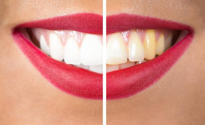 test Twitter Media - Lo que opinan los dentistas sobre blanquear los dientes con carbón activado. https://t.co/QP8bzQfqTz Vía: @LaVanguardia https://t.co/sukxoPVriP