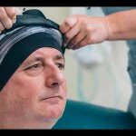 Hair-saving treatment for cancer sufferers trialled in Nelson