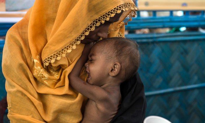 Skin and bones: Doctors fear for malnourished Rohingya children