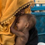 Skin and bones: Doctors fear for malnourished Rohingya children