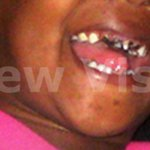 How to prevent bottle tooth decay in children