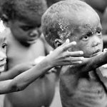Experts: Malnutrition now affecting economic growth