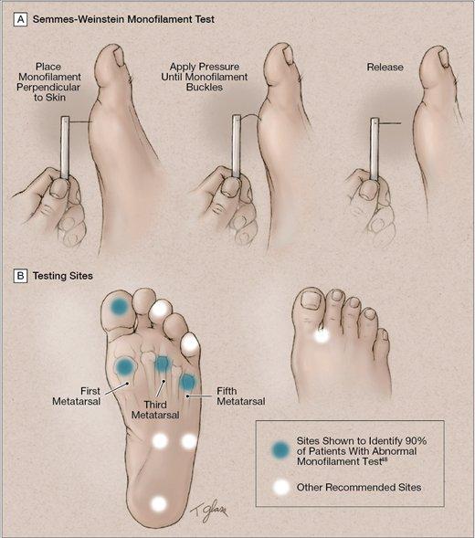 test Twitter Media - Diabetic Foot Guidelines: Test patients w #diabetes for peripheral neuropathy using the Semmes-Weinstein test https://t.co/izKUAdOorV https://t.co/kzgTDcivQe