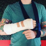 Ed Sheeran injured in bicycle accident which may affect upcoming shows