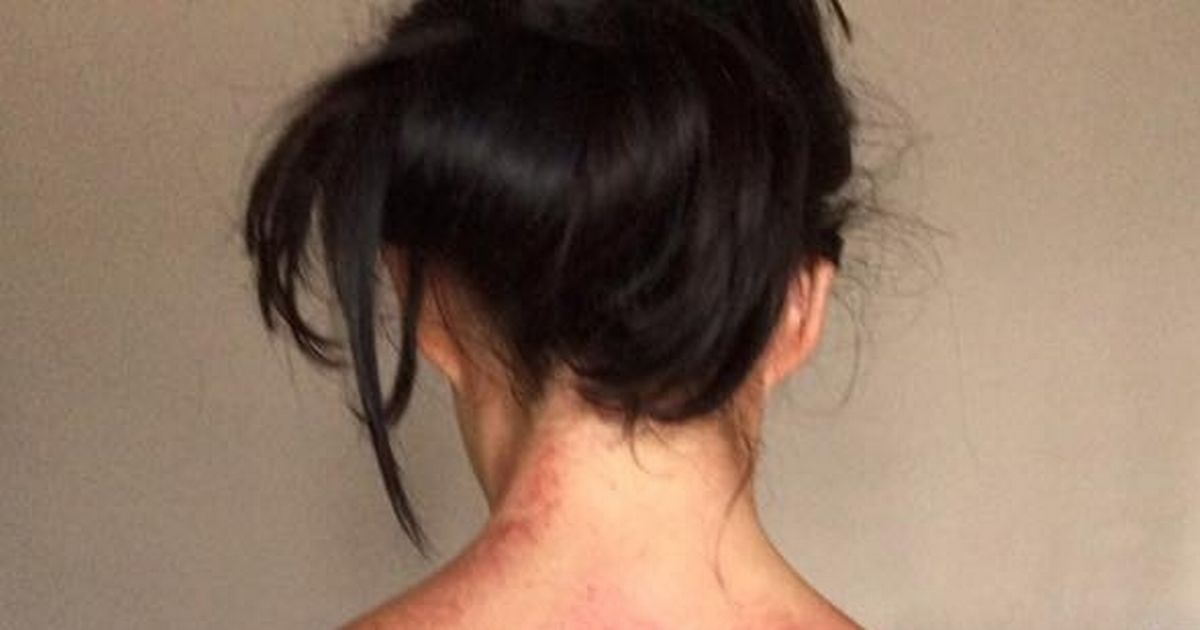 Woman left with horrific red marks for treatment back injuries caused by job which means she has to stand all day