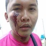 Foodpanda rider assaulted following traffic accident in Bandar Utama