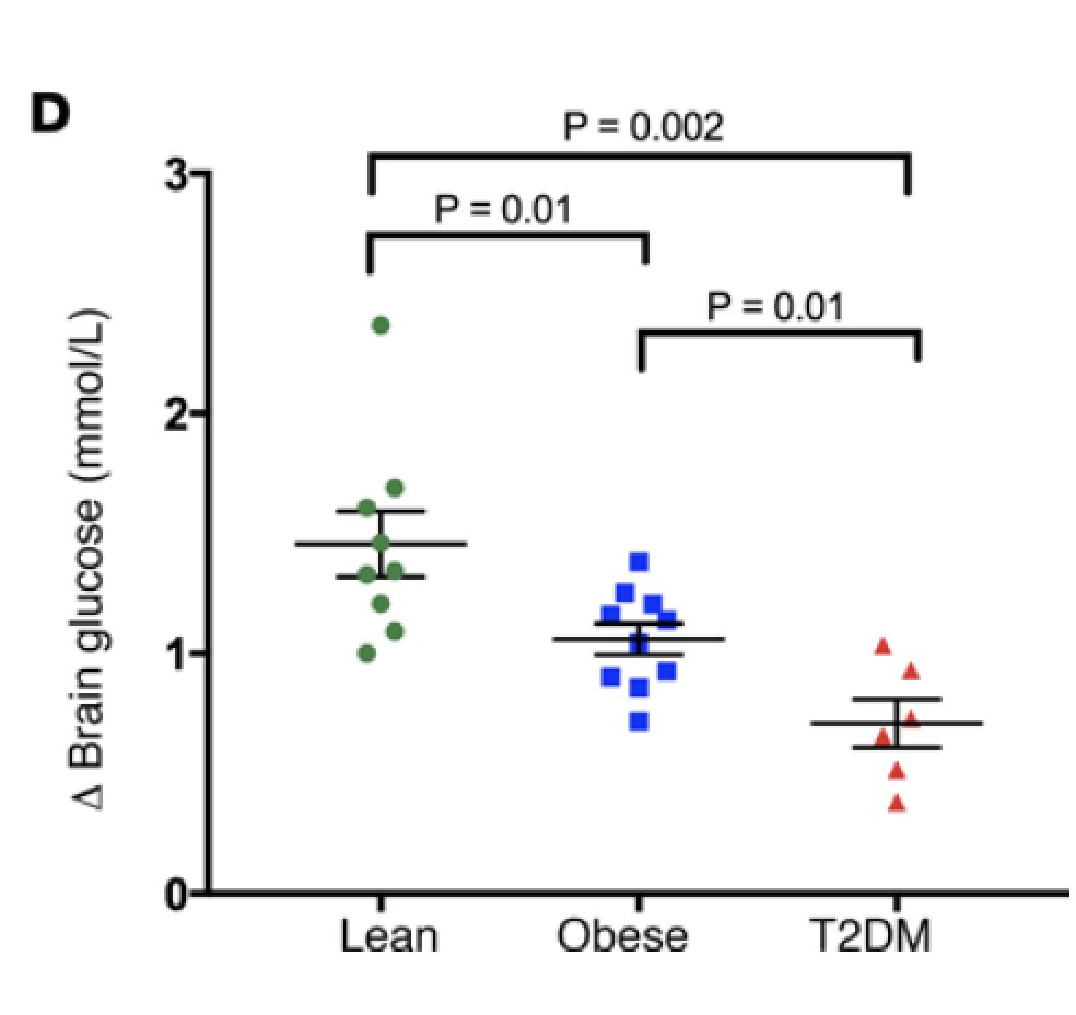 test Twitter Media - Low #brain glucose can accompany #obesity & #diabetes and may have long-term significance https://t.co/UTPdUGKTvZ @jclinicalinvest @YaleMed https://t.co/IiHMV71ER3
