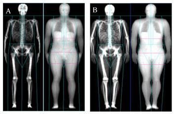 test Twitter Media - Two positioning protocols investigated using dual energy X-ray absorptiometry in the assessment of body composition https://t.co/dylNCFgdke https://t.co/FkgrJumVkl