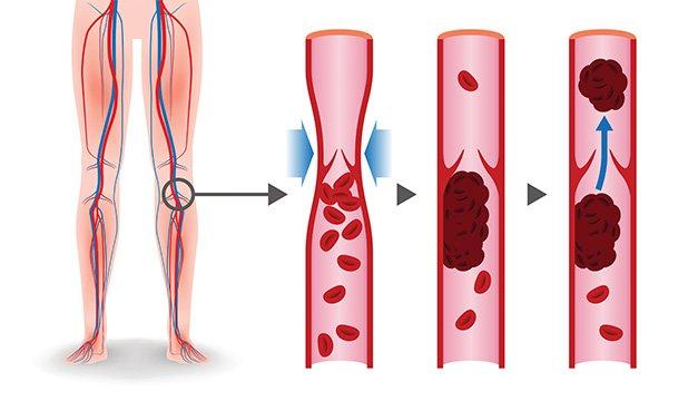 Cómo entender la enfermedad vascular periférica (EAP)   Diario El Mundo