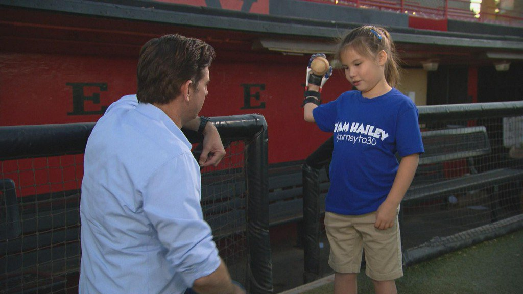7-year-old with 3-D printed hand to throw out World Series first pitch