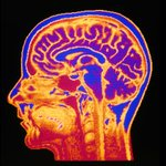 Geneticists are starting to unravel evolution's role in mental illness