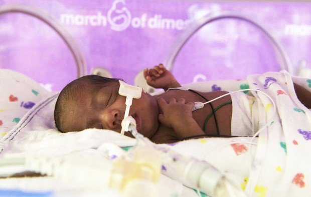 the impact of premature birth on child development Premature birth has long-term effects premature birth has consequences for children right into only 14% of men and 25% of women had had their own child.