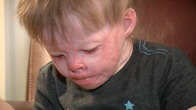 Oklahoma toddler severely burned in house fire makes miraculousrecovery