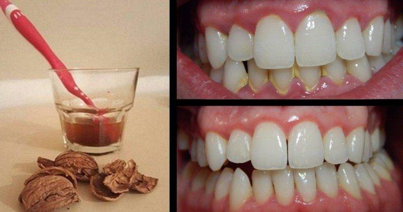 Но удаление зубного камня в домашних условиях 106
