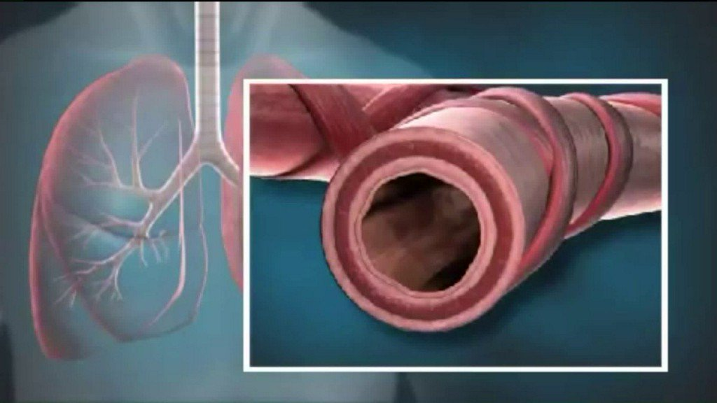 SSM Health Medical Minute: New option forasthmatics
