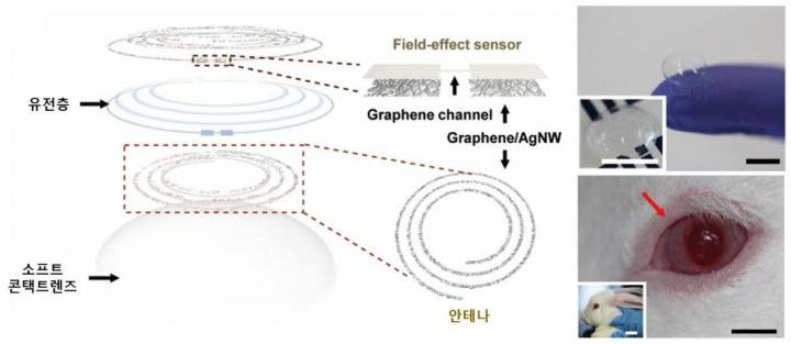 test Twitter Media - Researchers develop 'smart contact lens' to diagnose #diabetes and #glaucoma https://t.co/xhs1sm9s4e #healthtech #medtech #research #innovation https://t.co/FP3bbD8nfT