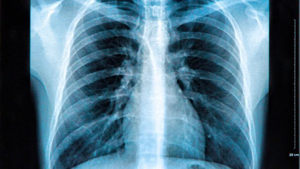 Cancer missed as junior doctors left to read x-rays