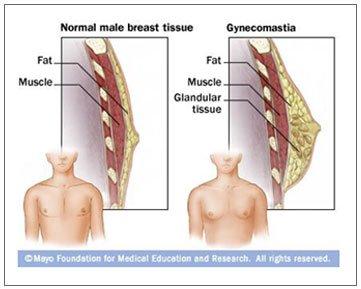RT @UbatOhUbat: Penyalahgunaan steroid oleh abang2 sado boleh menyebabkan gynecomastia (pembesaran buah dada) https://t.co/h6rsK82UvD