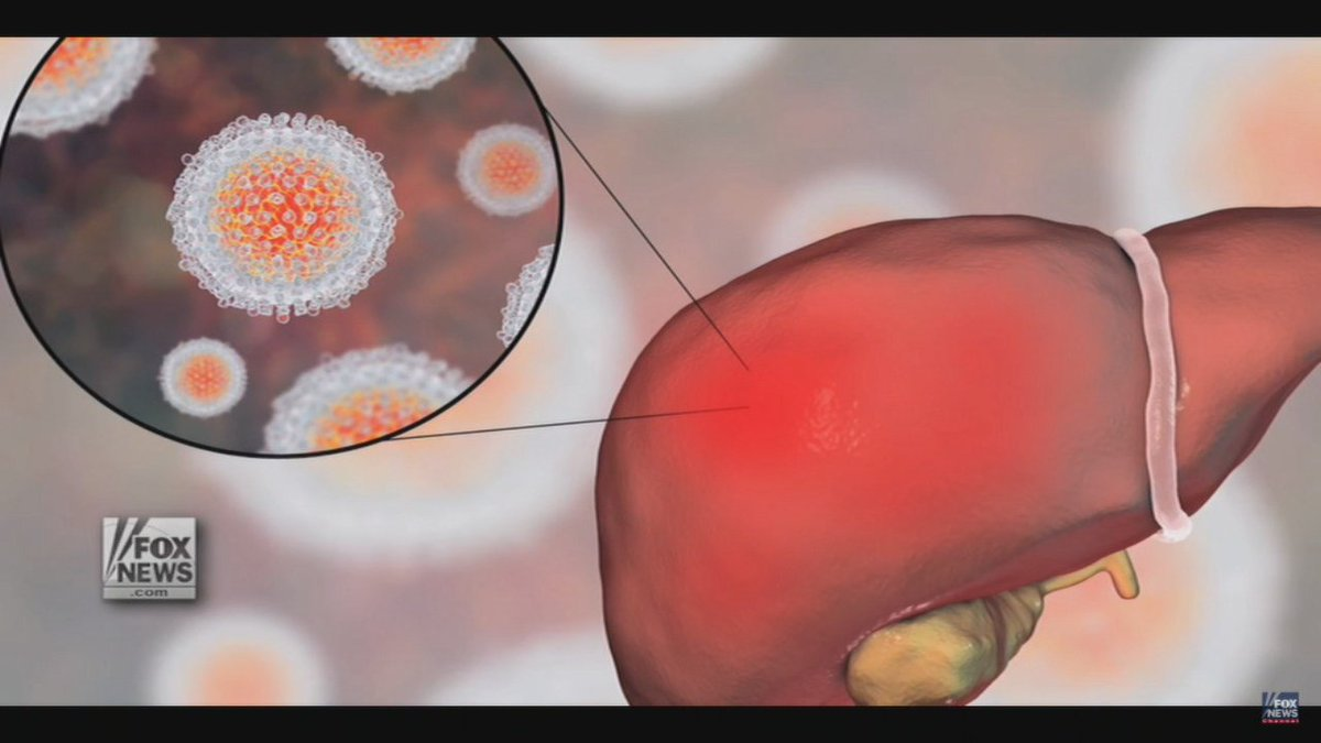 Kentucky health officials declare an outbreak of acute Hepatitis A