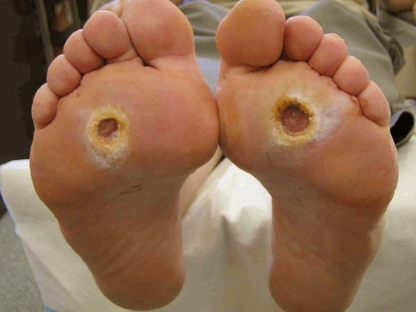 Why diabetics need to take care of their feet