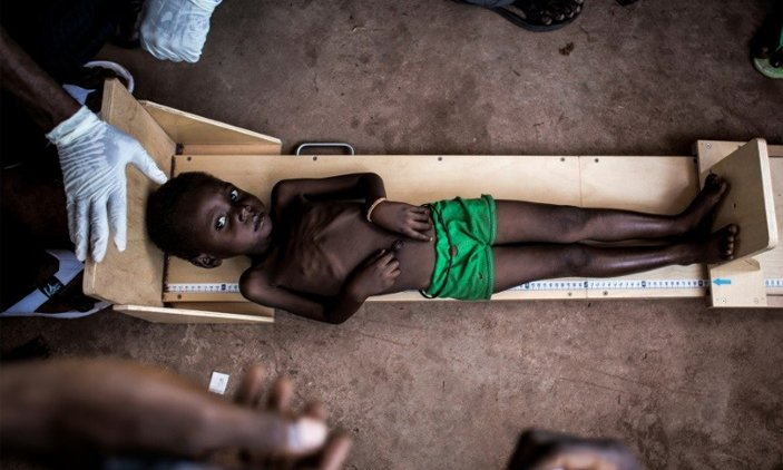 400,000 children in DR Congo could die from hunger, says Unicef