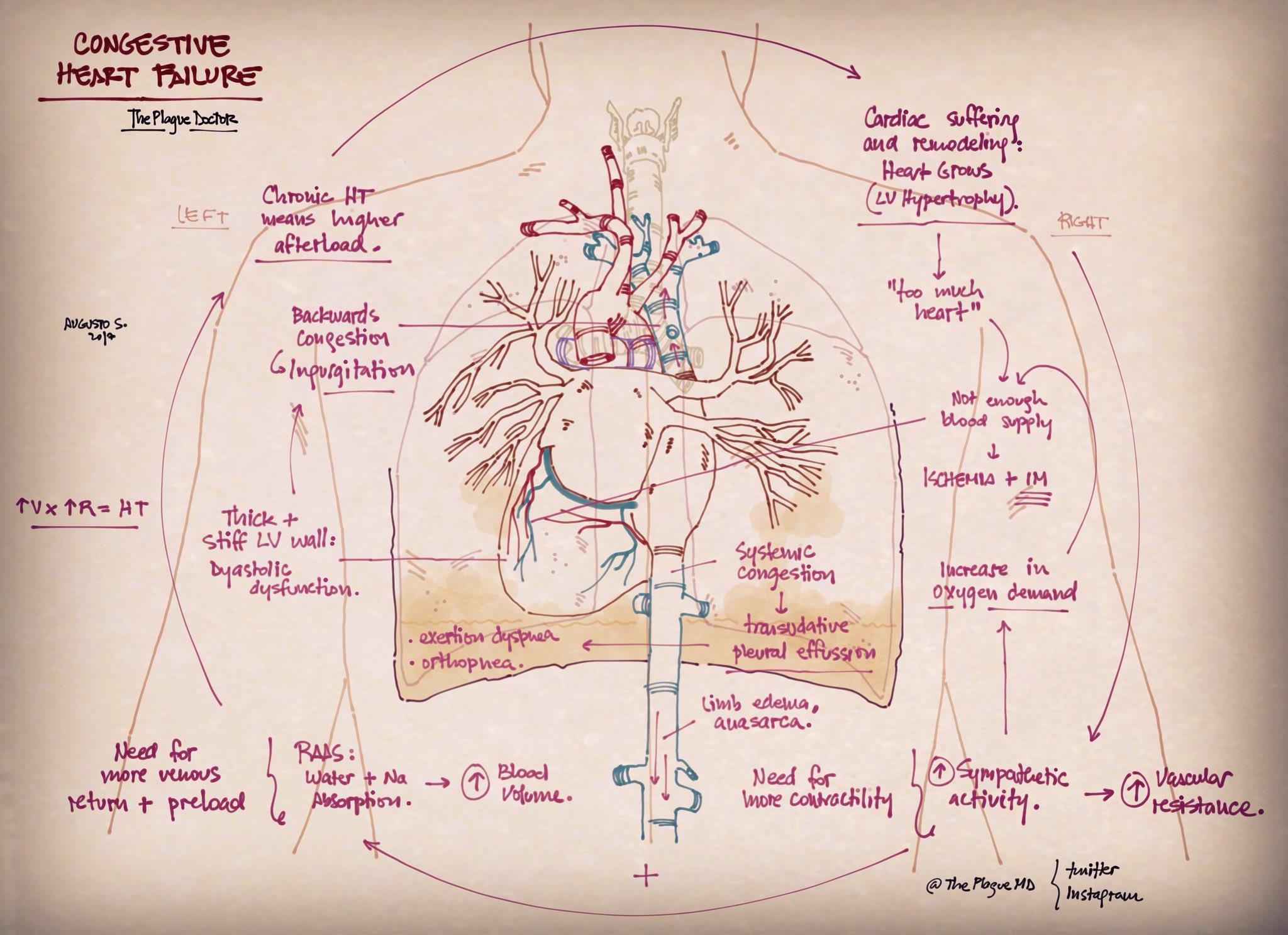 Congestive heart failure #pathophysiology #cardiology #neumology   #medicine #FOAMed #FOAM #MedEd #medicalillustration #illustration #USMLE #ENARM #2MIR18 #medstudent #medstudentlife #primarycare #familymedicine #internalmedicine #medicalresidency #emergencymedicine https://t.co/iD8lVoBNZW