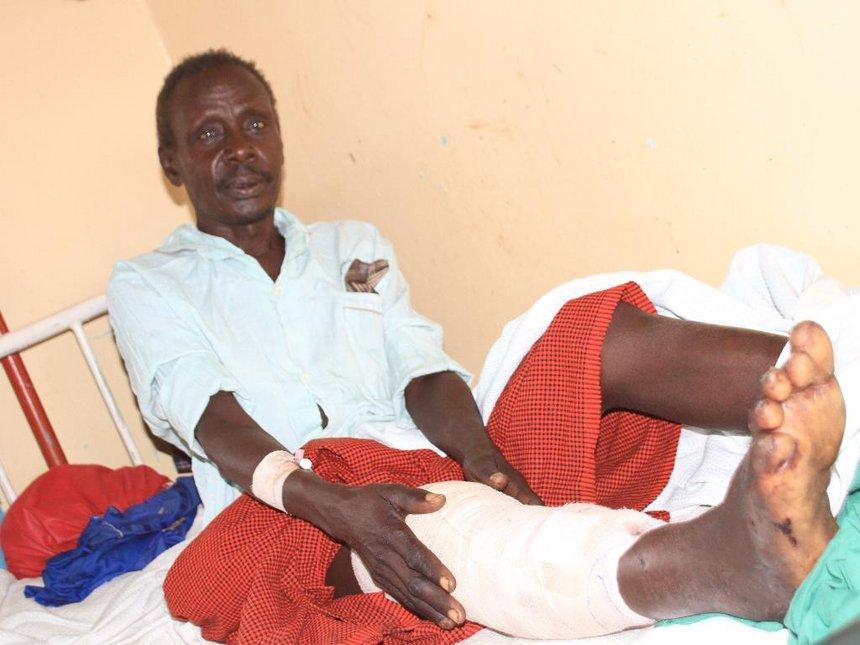 Man hospitalised after crocodile attack in Lake Baringo