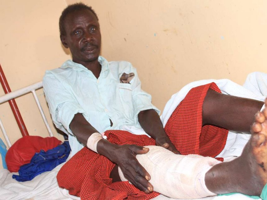 Crocodile bites man's leg as he bathes in Lake Baringo