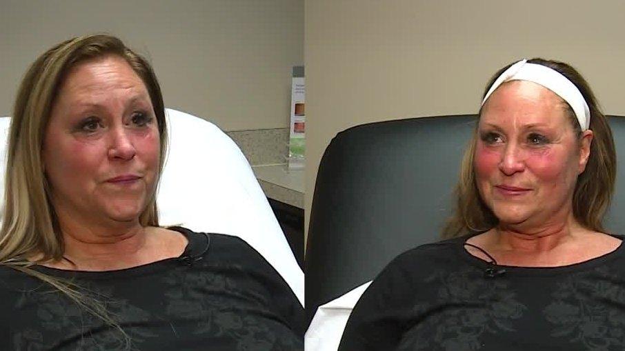 Mason clinic using new technology to lift cheeks