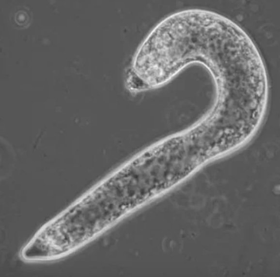 test Twitter Media - An amoeba that grows into a candy cane? Learn about this oddly-shaped organism https://t.co/Ov5y9YzdHT (By @JenniferFrazer) https://t.co/hFhFMf4CIQ