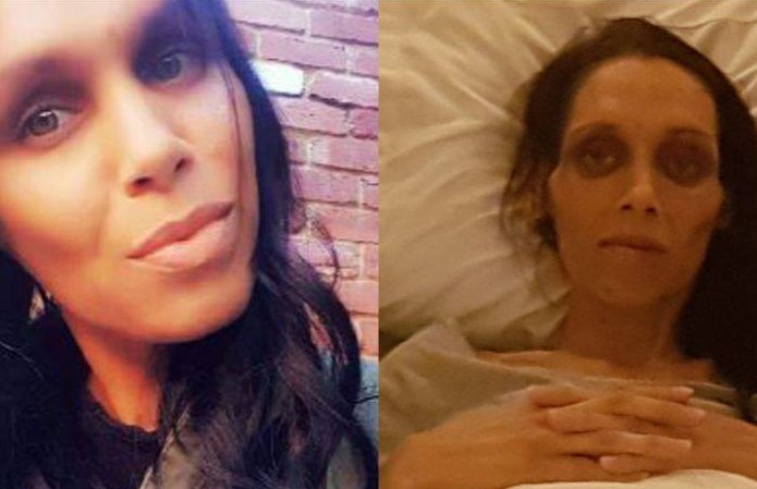 32-year-old woman dies from bowel cancer after doctor told her she was 'too young' to have it