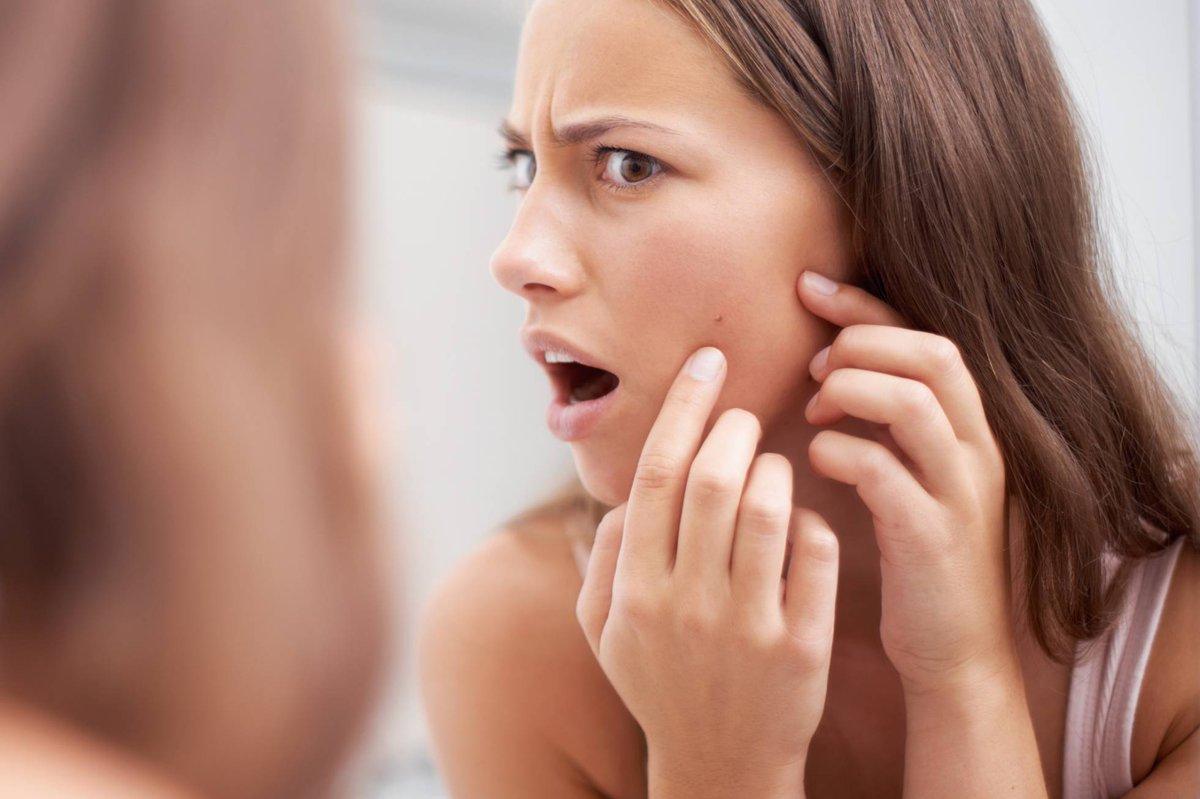 test Twitter Media - Los seis tipos de granos que distinguen los dermatólogos y cómo tratarlos. https://t.co/A6s5KNmsEH Vía: @el_pais https://t.co/miGgyoLKWO