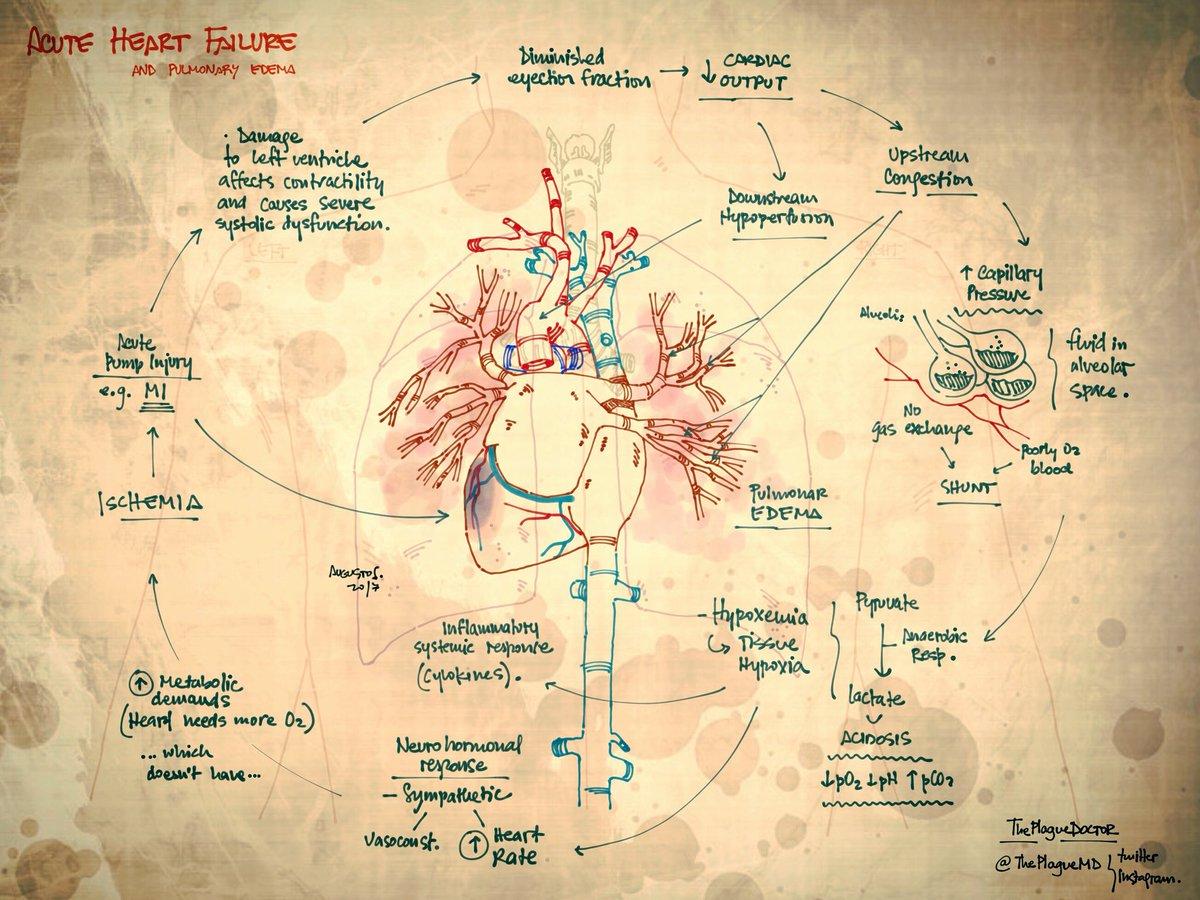 Acute failure and pulmonary edema by @theplaguemd https://t.co/IaaBwQfrYE