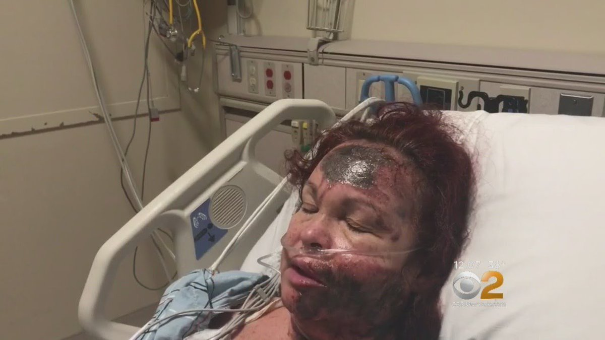 NYPD Says Acid Burn Victim's Wounds Were Self-Inflicted