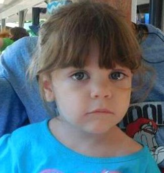 Mom of burned, dead girl was burned as a child
